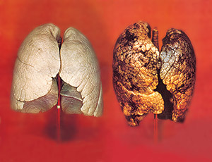 05_tobacco_large_EU_lung_02_en_medium