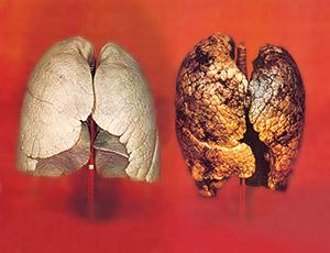 05_tobacco_large_EU_lung_02_en_medium