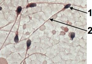 05a_sperm (cropped)
